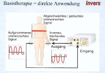 Grafik zeigt symbolisch wie Patient und Gerät verbunden werden und die Wirkung der Signalkurven