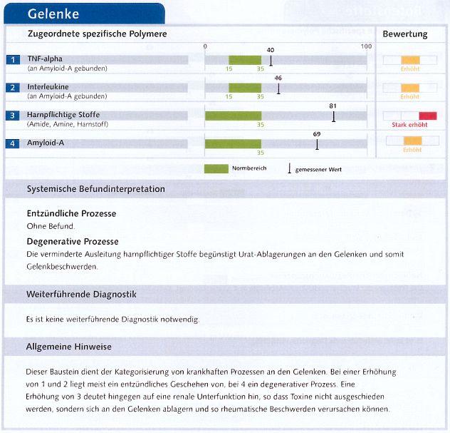 Tabelle mit grafischer Darstellung der Werte zu Gelenken